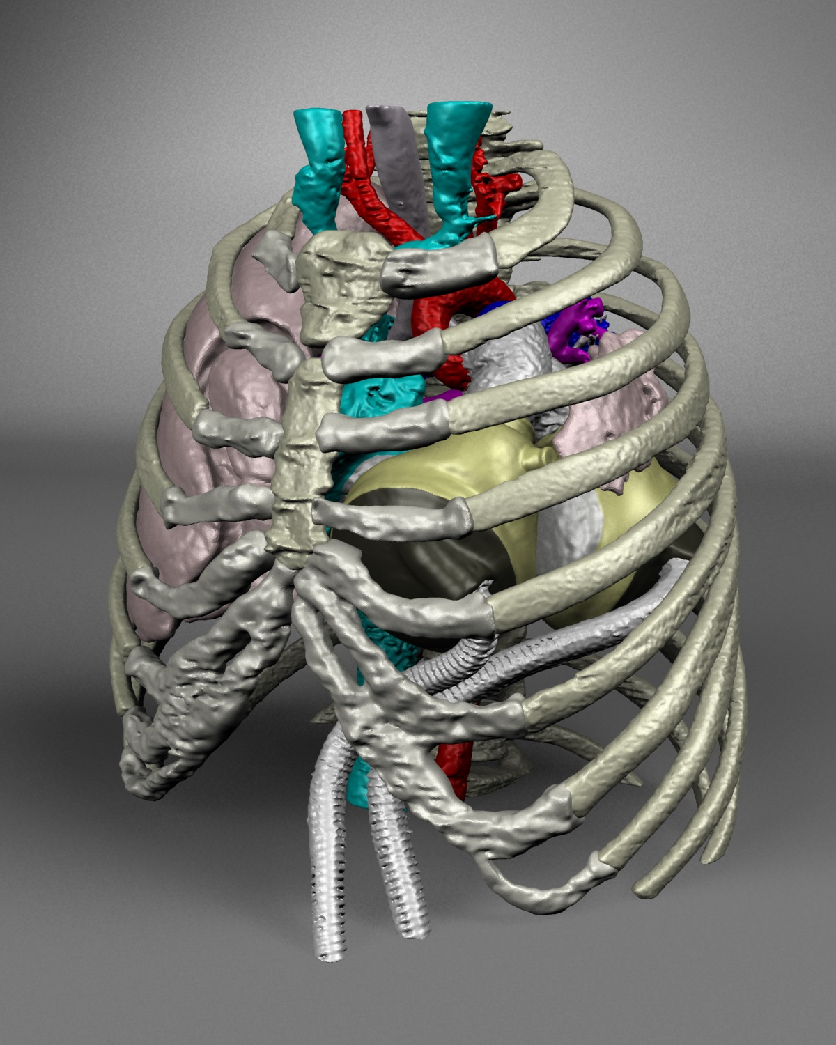 Virtual artificial heart implantation project earns tech competition award