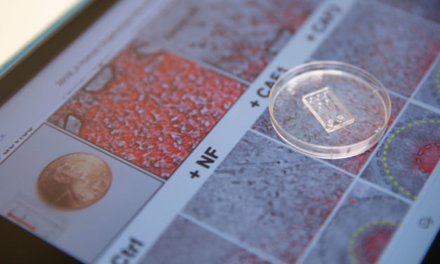 ASU researchers chip away the mysteries of cancer metastasis