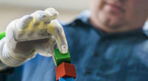 Patients Try Most Intuitive Hand Prosthetics Yet in Pilot Trial
