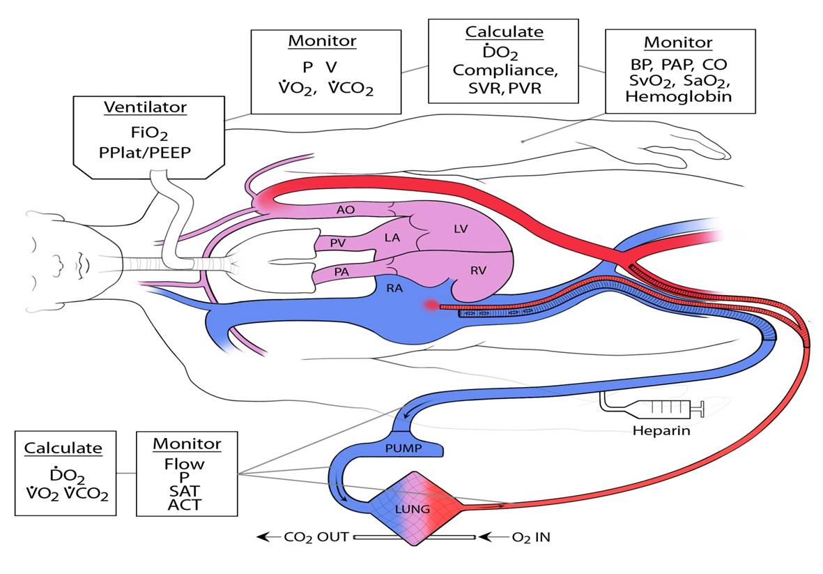 schematic of the extracorporeal membrane oxygenation, or ECMO, technology